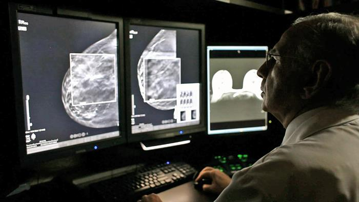 How more pixels get more out of a mammogram