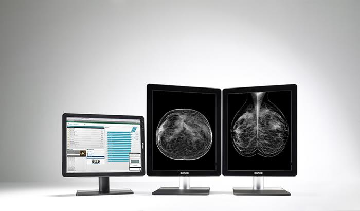 Barco's Coronis 5MP LED diagnostic display for digital breast imaging
