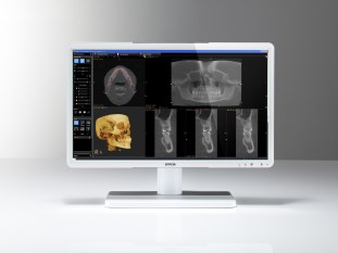 Barco Eonis dental displays
