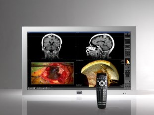 Barco's MD large-screen surgical display