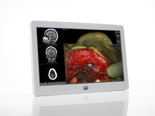 "26"" surgical display"