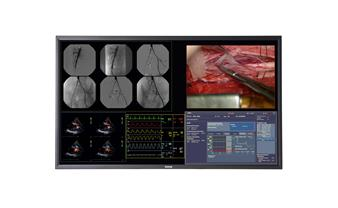 Barco's 58-inch surgical display