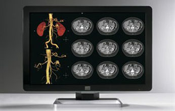 Barco expands range of multi-modality display systems for advanced healthcare imaging