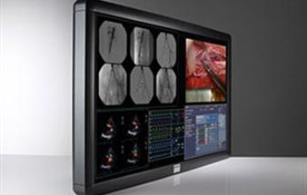 New large-screen color display for the surgical suite