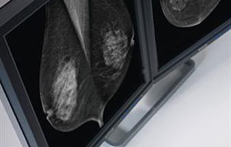 Read breast tomosynthesis images faster with RapidFrame technology