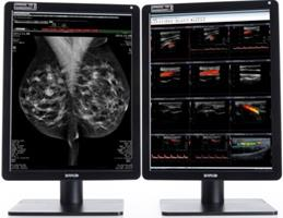 how mammography displays impact a radiologist s reading routine barco