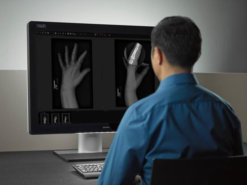 Radiologist with Coronis Uniti