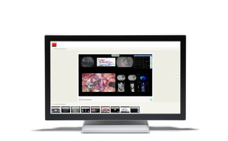 "Barco 21.5"" surgical touchscreen"