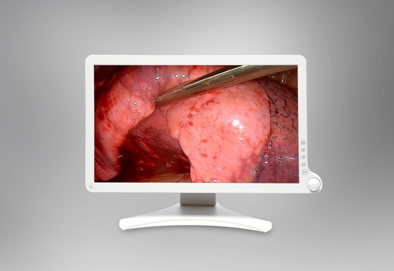 Barco's AMM 215WTD surgical display