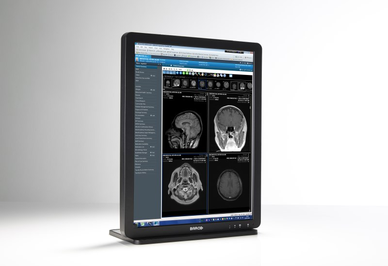 "Barco's Eonis 21"" clinical review display"