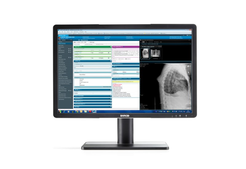 Barco's Eonis clinical display
