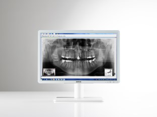 Barco's Eonis dental displays