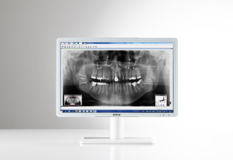 "Eonis 24"" (MDRC-2224 WP) Dental"