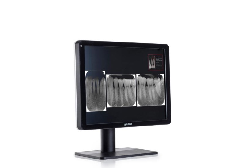 Barco Nio 3MP dental display