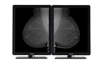 Barco's Nio diagnostic display for medical imaging, cleared for mammography