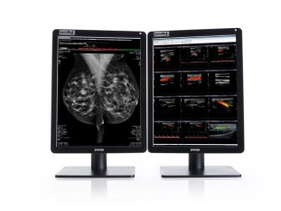 Barco Nio Color 5MP display for radiology and mammography