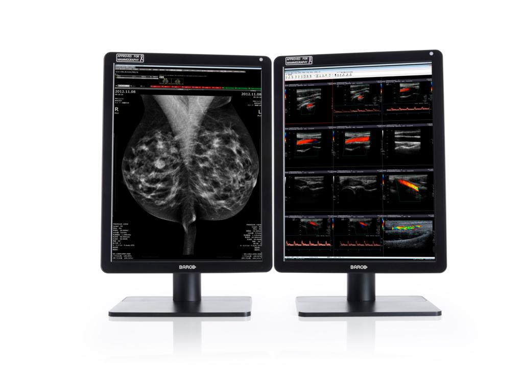 barco nio color mp display for radiology and mammography