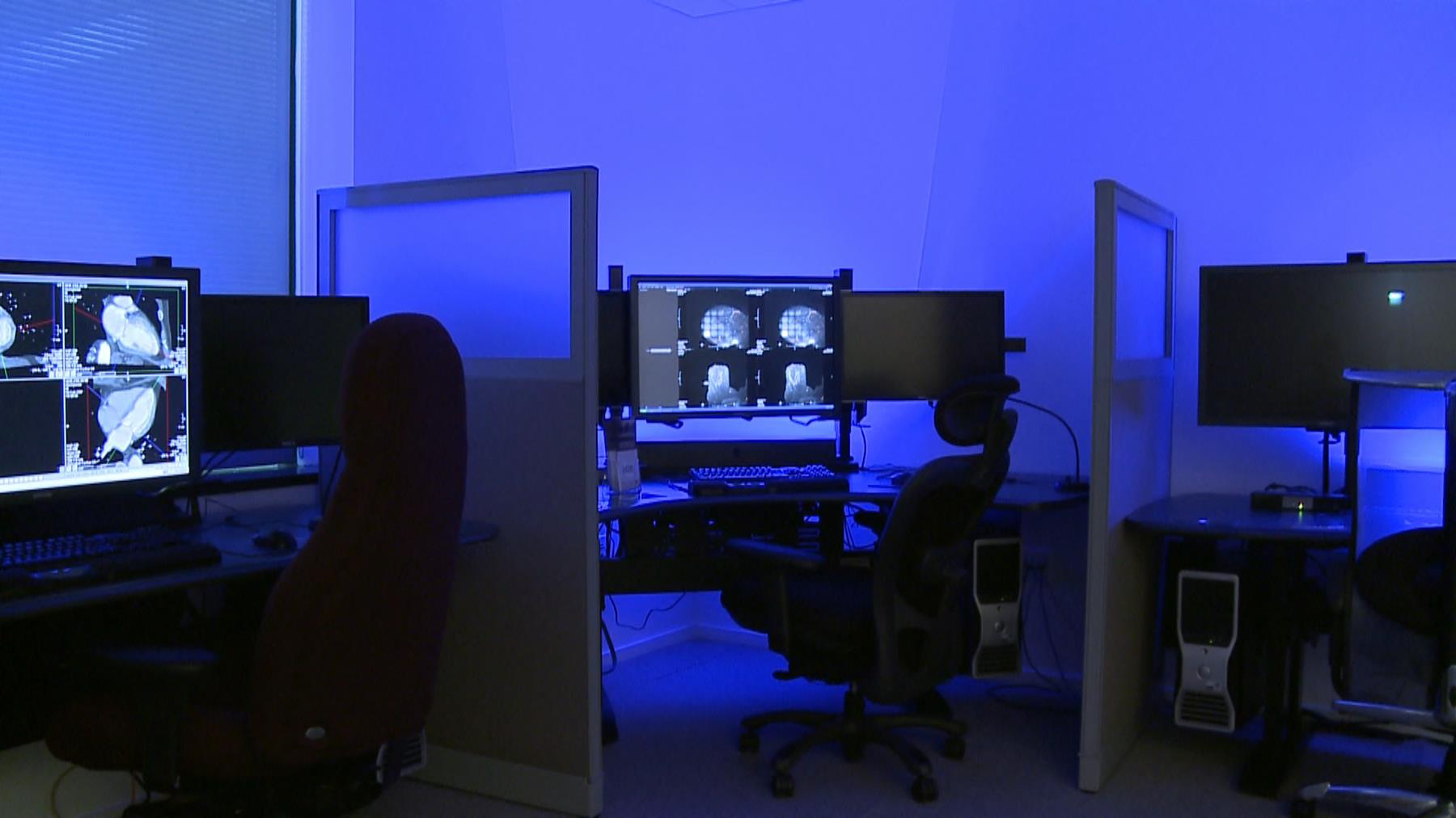 American College Of Radiology Optimizing The Radiologists Work